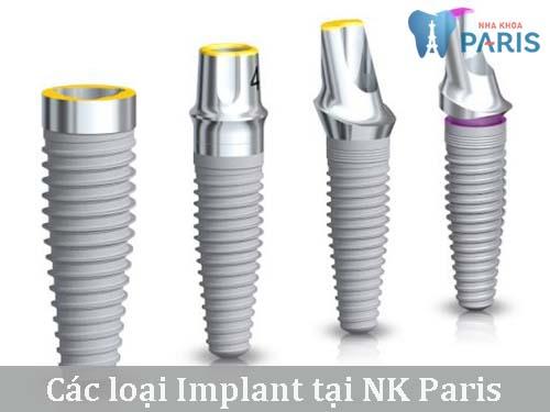Implant Tekka là gì-nên cấy ghép Implant ở đâu uy tín? 3