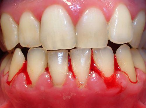 Đâu là nguyên nhân và cách điều trị viêm nướu răng?
