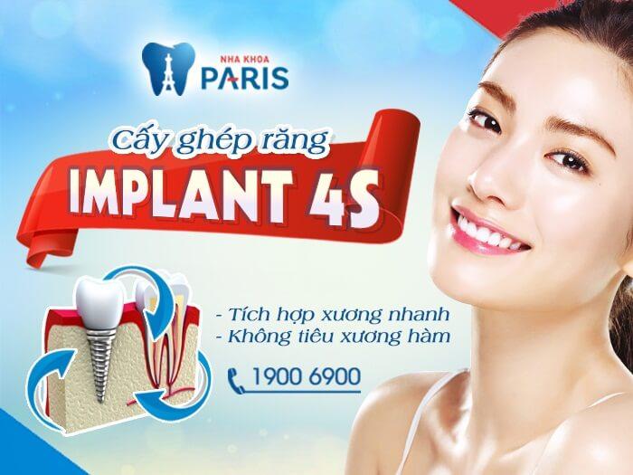 Răng giả Implant và những ưu điểm vượt trội cần biết 2