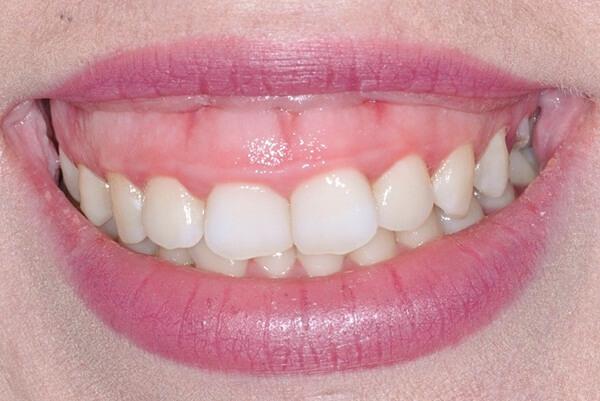 Nguyên nhân và phương pháp chữa cười hở lợi hiệu quả