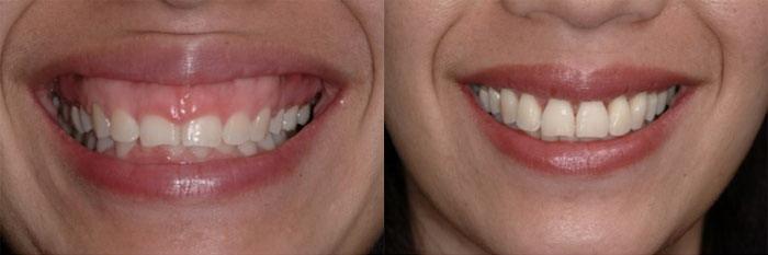 Nguyên nhân và phương pháp chữa cười hở lợi hiệu quả 2