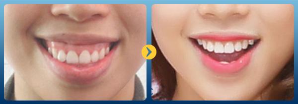 Nguyên nhân và phương pháp chữa cười hở lợi hiệu quả 3