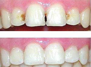 Trám răng bằng chì có độc không? [Vật liệu trám răng an toàn] 2