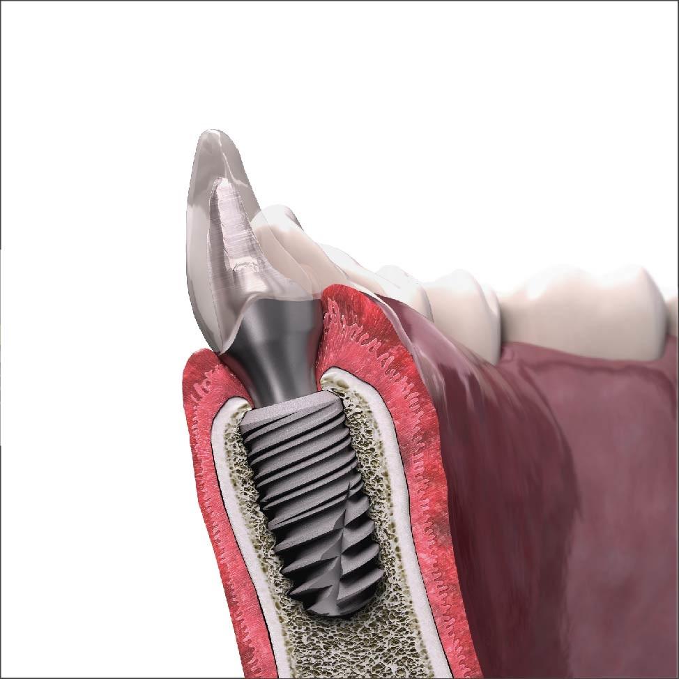 Implant Tekka là gì-nên cấy ghép Implant ở đâu uy tín?