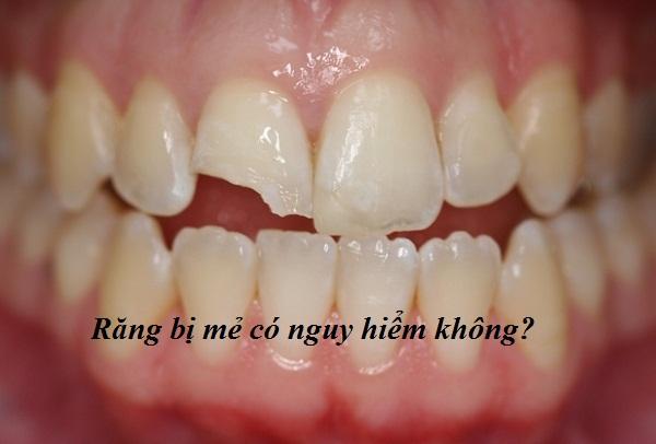 Trám răng mẻ góc giúp phục hình răng AN TOÀN Nhanh Chóng