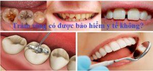 Trám răng có được bảo hiểm y tế không? - Chuyên gia giải đáp 1
