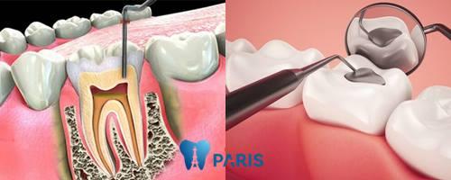 Tại sao tủy răng bị thối và cách điều trị như thế nào hiệu quả triệt để? 2
