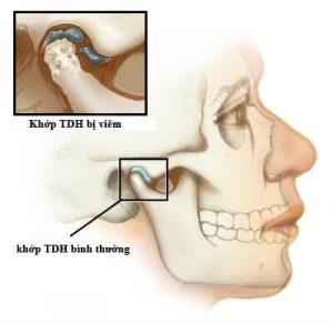 Đau răng đau quai hàm là gì, khắc phục ra sao?