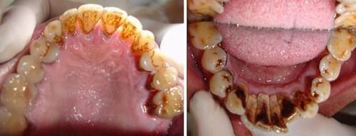 [Tư vấn]- Răng sâu đang đau có nhổ được không?