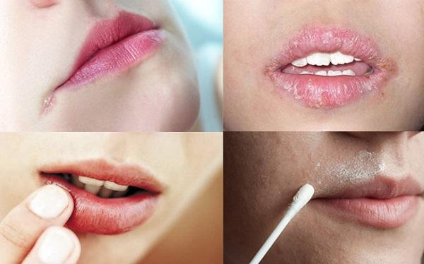 Lơ mép miệng do nhiều nguyên nhân gây ra