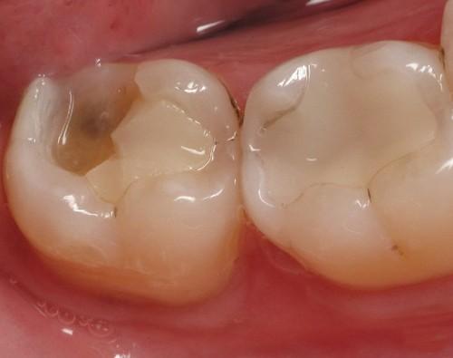 Tại sao răng lấy tuỷ bị vỡ và cách khắc phục như thế nào