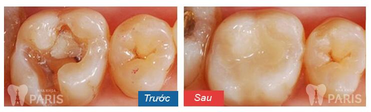Nguyên nhân vì sao răng lấy tuỷ bị vỡ & khắc phục sao HIỆU QUẢ nhất 1