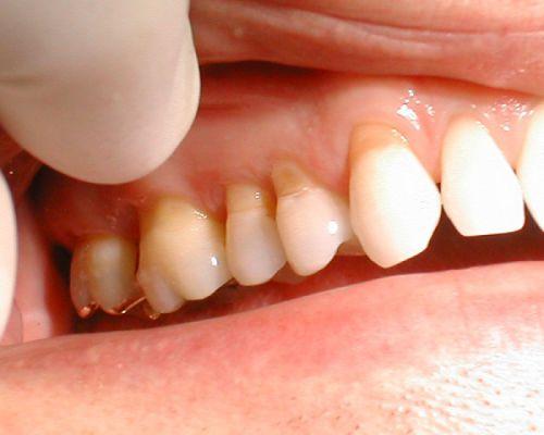 Răng lung lay độ 3 là như thế nào? Có nguy hiểm không?