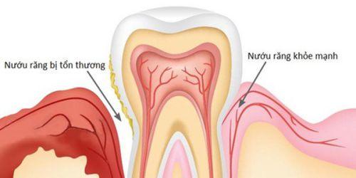 Răng lung lay độ 3 là như thế nào? Có nguy hiểm hay không? 2