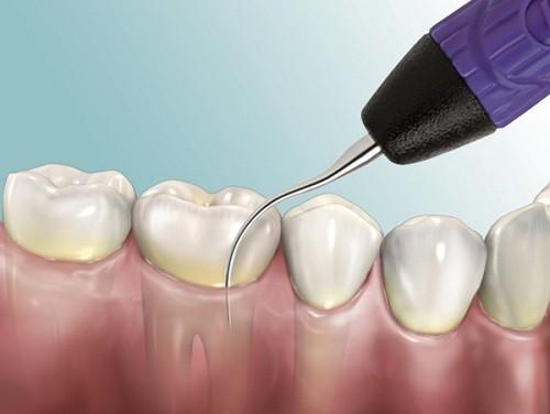 Lấy cao răng có gây đau hay ê buốt gì không?