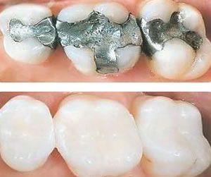 Trám răng giá bao nhiêu tiền cho hiệu quả chắc đẹp, bảo tồn tối đa?